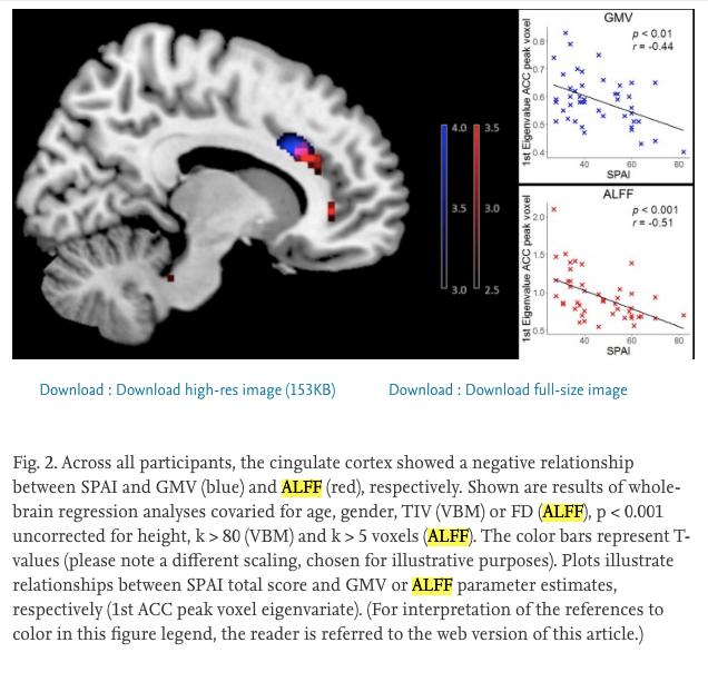 Vztah mezi SPAI, GMV, ALFF - Užívání chytrého telefonu může působit změny ve struktuře mozku a závislost