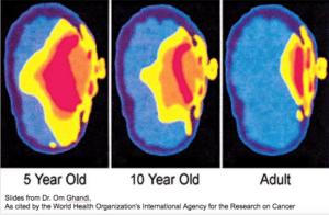 Propagace záření z mobilního telefonu podle stáří člověka
